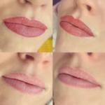 Healed Lipstick Tattoo