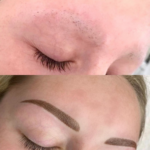 Alopecia Brows