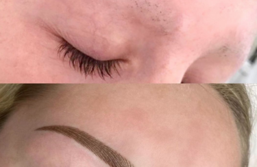 Alopecia Brows