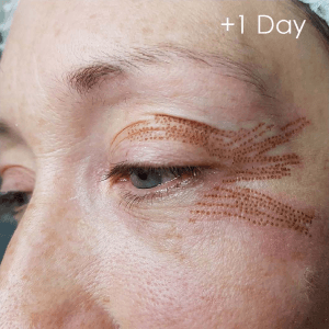 1 day after plasma skin treatment