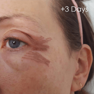 3 days after plasma skin treatment