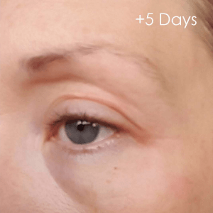 5 days after plasma skin treatment