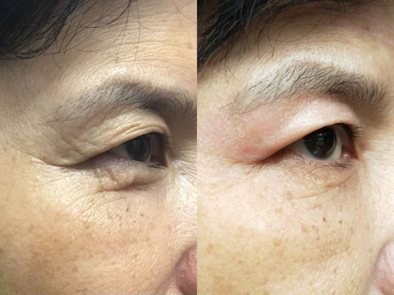 Before and after image using plasma skin treatment