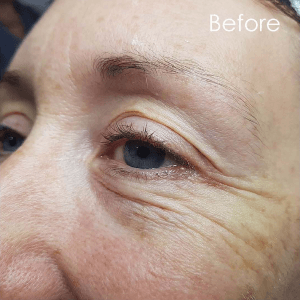 Before plasma skin treatment