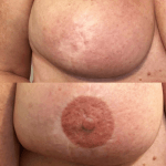Chloe Breast Work