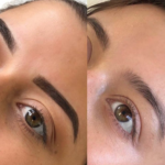 Combo Brows Eyebrow Tattooing