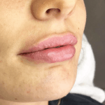Tracie Giles Lip Fillers