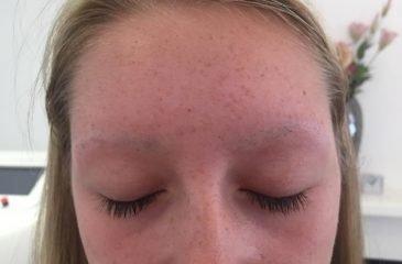 Kayla's Alopecia