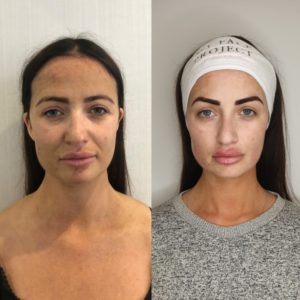 Chantelle Houghton My Face Project