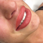 Chantelle Houghton Lip Fillers with Gloss & Go