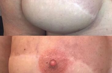 Areola Tattooing
