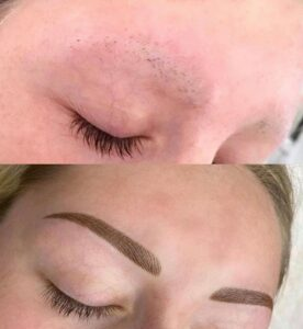 Alopecia Eyebrows