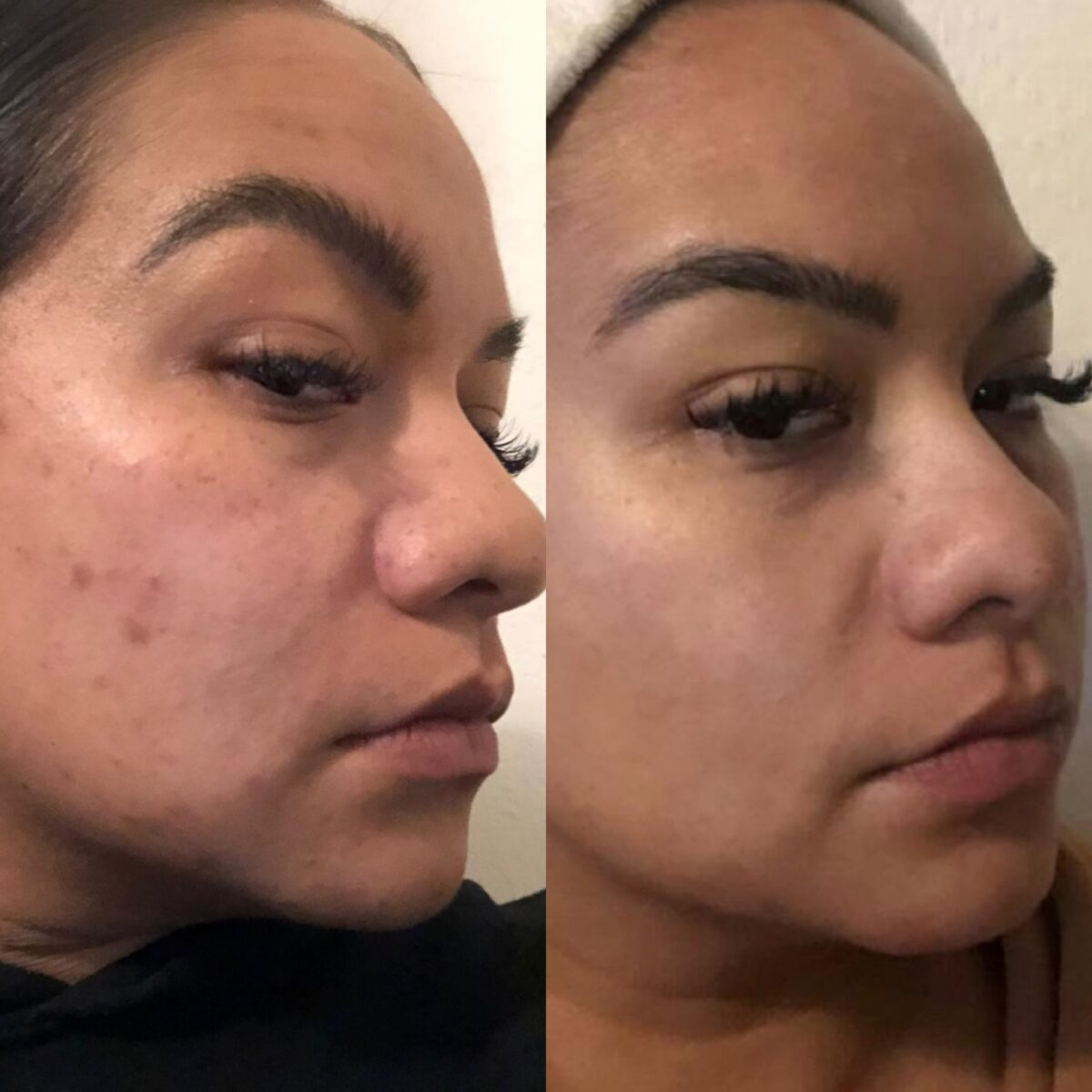 Cream Acne Scars