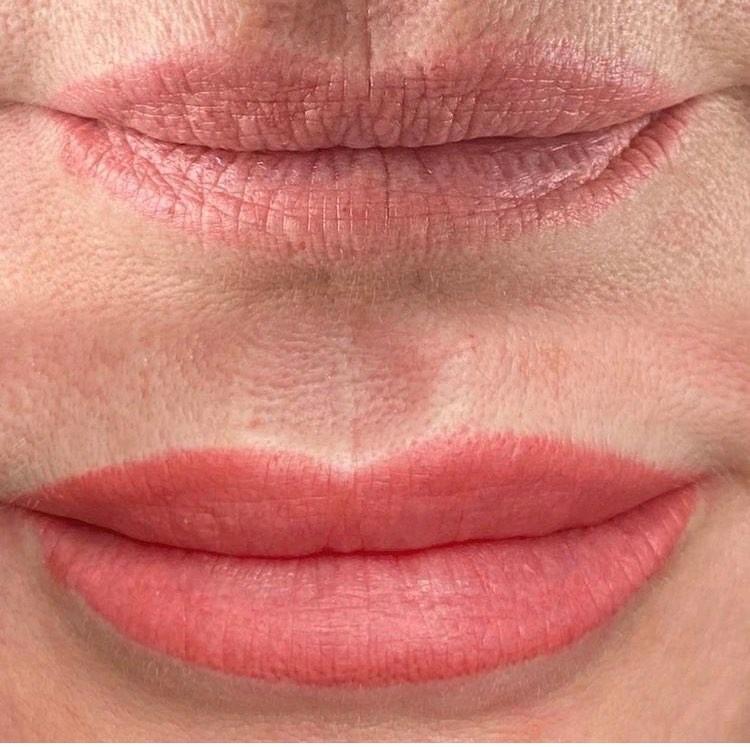Anti-ageing Lips