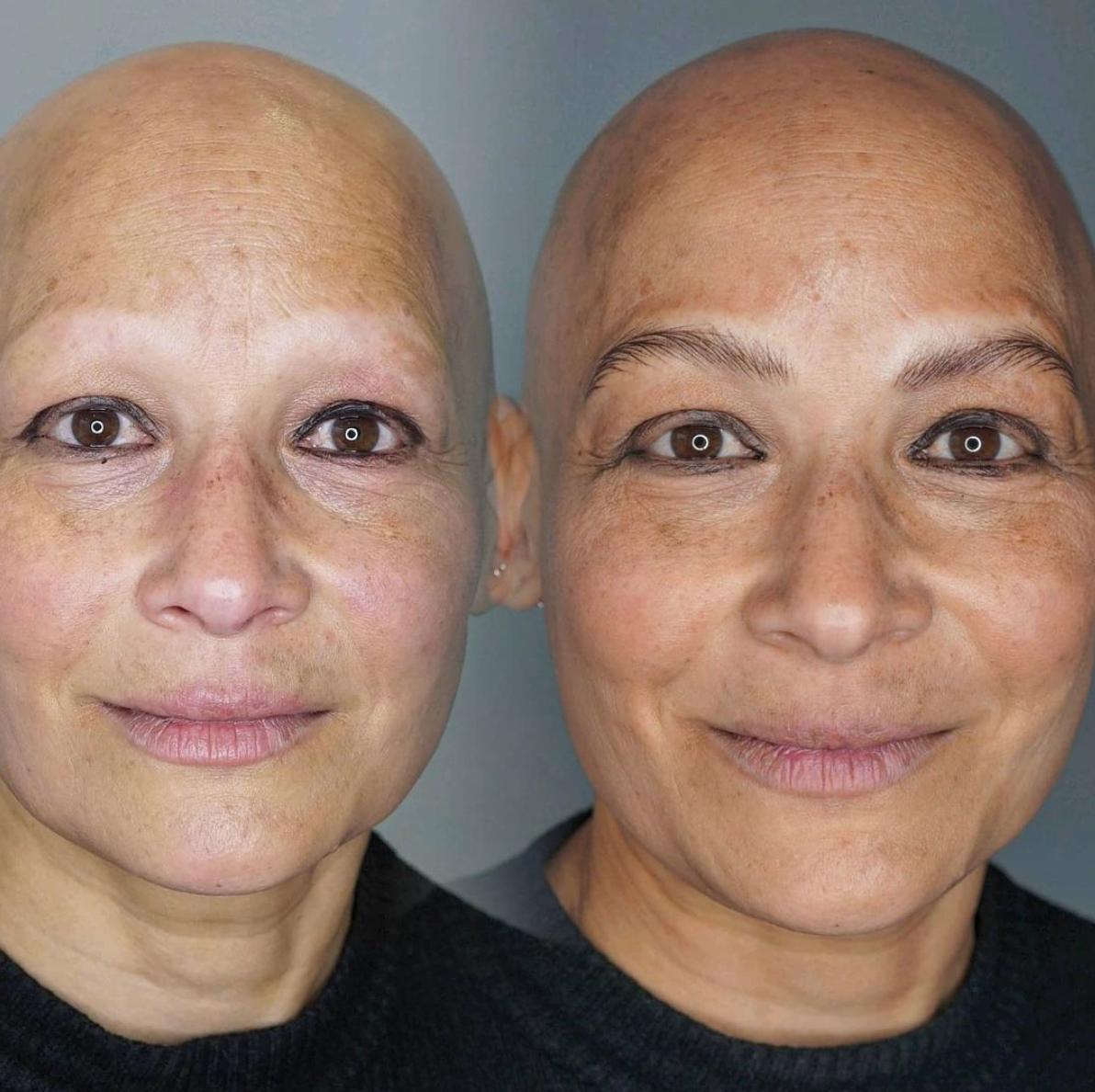 Alopecia Eyebrows