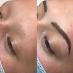 Microblading Alopecia Eyebrows